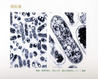 根粒菌 バイテロイド